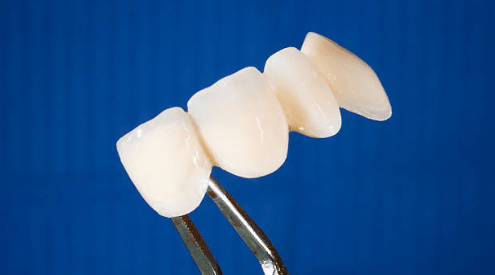 применение зубных коронок