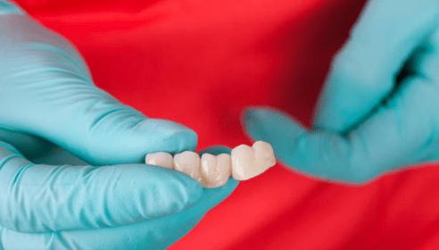 зубные коронки фто