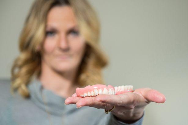 Съёмные зубные протезы - виды, типы