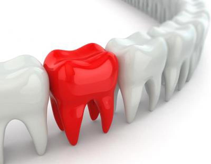временными зубными протезами