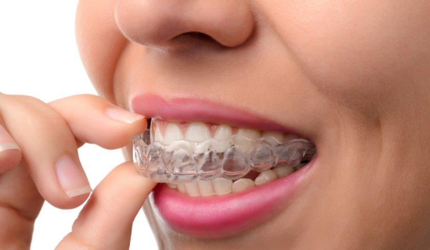Силиконовые зубные протезы фото