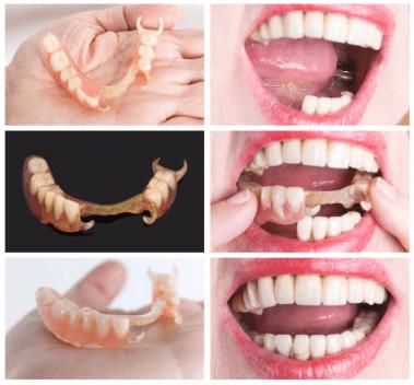 протезы при отсутствии части зубов