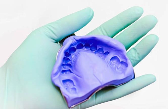оттиск зубов челюсти при изготовлении протеза