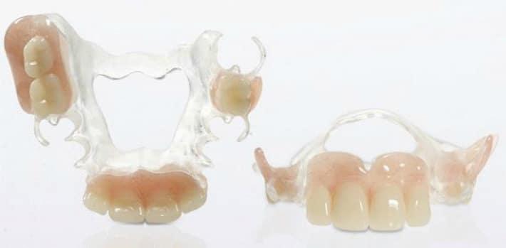зубные протезы квадротти - фото