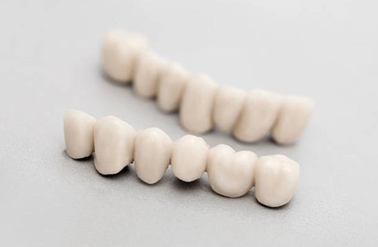 Мостовидные зубные протезы, материалы и уход