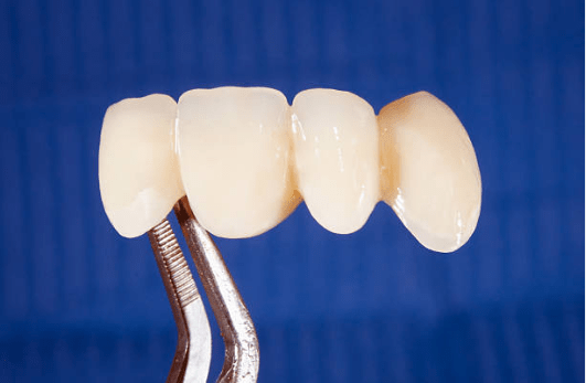 фото зубного моста из диоксида циркония