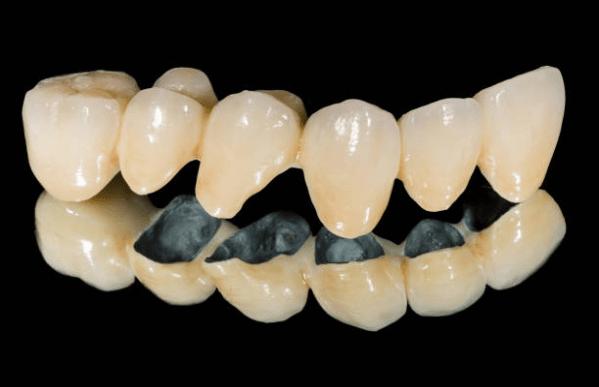 зубные мосты из металлокерамики