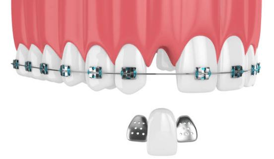 адгезивный зубной мост