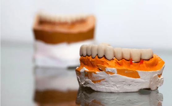 установка зубных мостов
