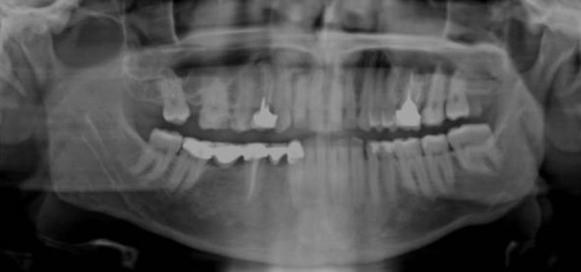 панорамный снимок для протезирования зубов
