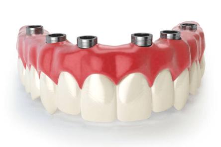 зубные мосты на имплантах - какие они