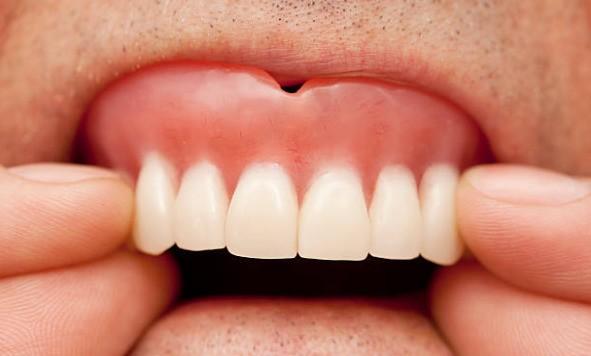 зубной протез натирает десну
