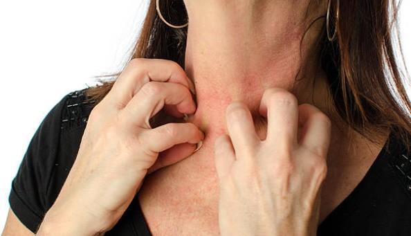 как проявляется аллергия на протезы