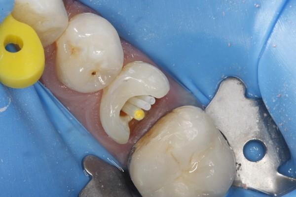 зубной штифт стекловолоконный