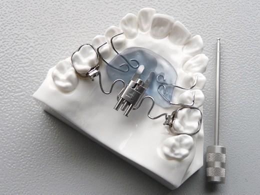 приспособления ортодонтическое